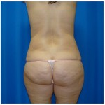 Liposuction Before & After Patient #983