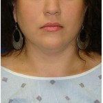 Liposuction Before & After Patient #967