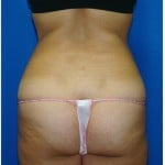 Liposuction Before & After Patient #978