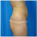 Liposuction Before & After Patient #970