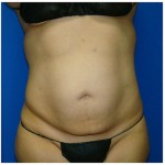 Liposuction Before & After Patient #988