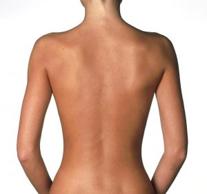 back-liposuction-houston