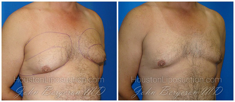 Lyposuction photos male breasts