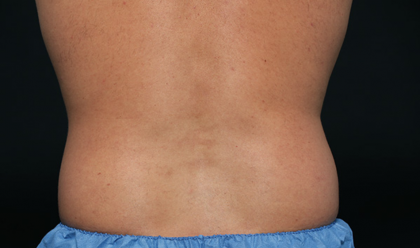 CoolSculpting Before & After Patient #1535