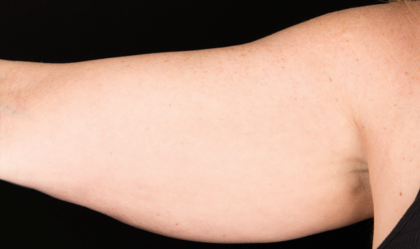 CoolSculpting Before & After Patient #1529