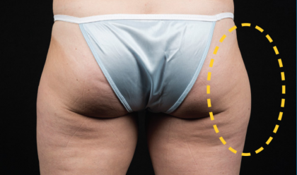 CoolSculpting Before & After Patient #1538