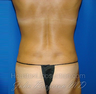 Liposuction Before & After Patient #1690