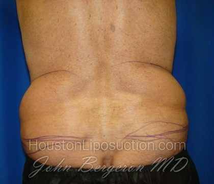 Liposuction Before & After Patient #1674
