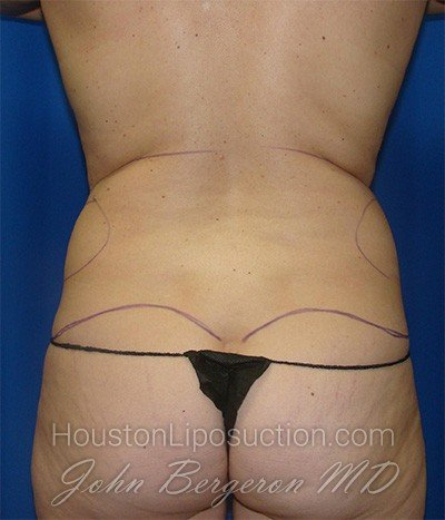 Liposuction Before & After Patient #1697