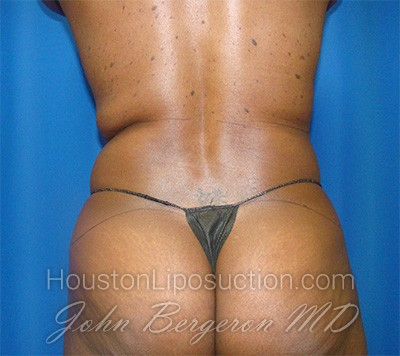 Liposuction Before & After Patient #1723