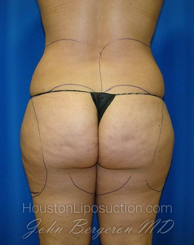 Liposuction Before & After Patient #1735