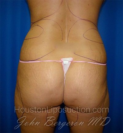 Liposuction Before & After Patient #1669