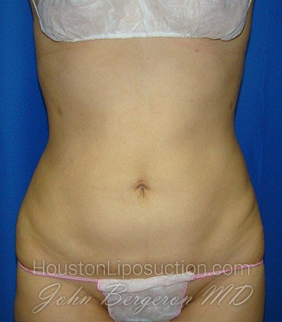 Liposuction Before & After Patient #1759