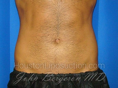 Liposuction Before & After Patient #1700