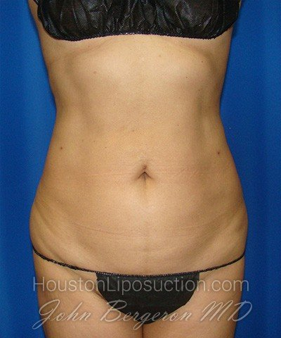 Liposuction Before & After Patient #1752