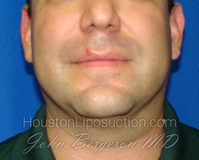 Liposuction Before & After Patient #1664
