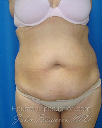 Liposuction Before & After Patient #1685