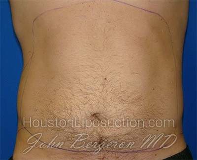 Liposuction Before & After Patient #1745