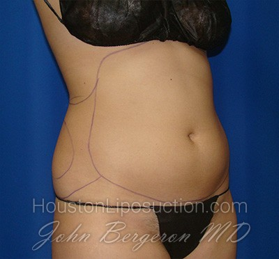 Liposuction Before & After Patient #1714