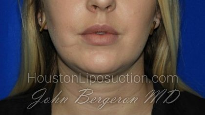 Liposuction Before & After Patient #1912