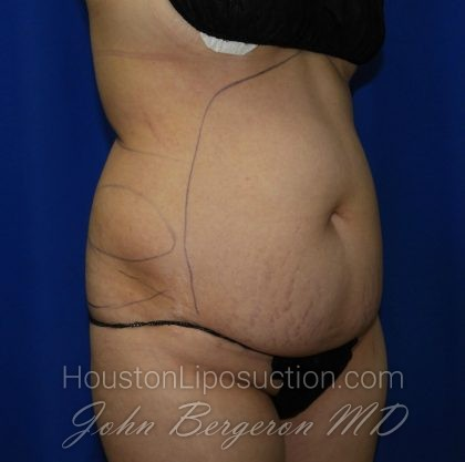 Liposuction Before & After Patient #2001