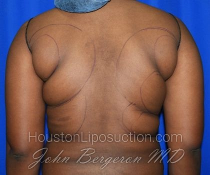 Liposuction Before & After Patient #1998