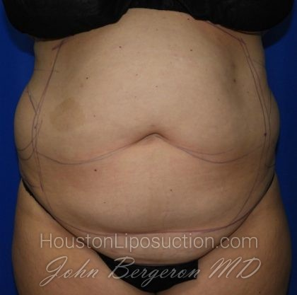 Liposuction Before & After Patient #2167