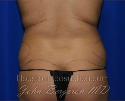 Liposuction Before & After Patient #2211