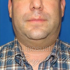 Liposuction for Men Before & After Patient #2490