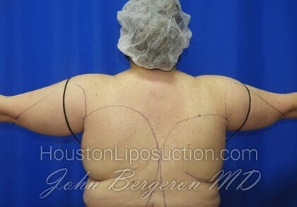 Liposuction Before & After Patient #2516
